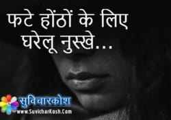 home remedies of cracked lips in hindi